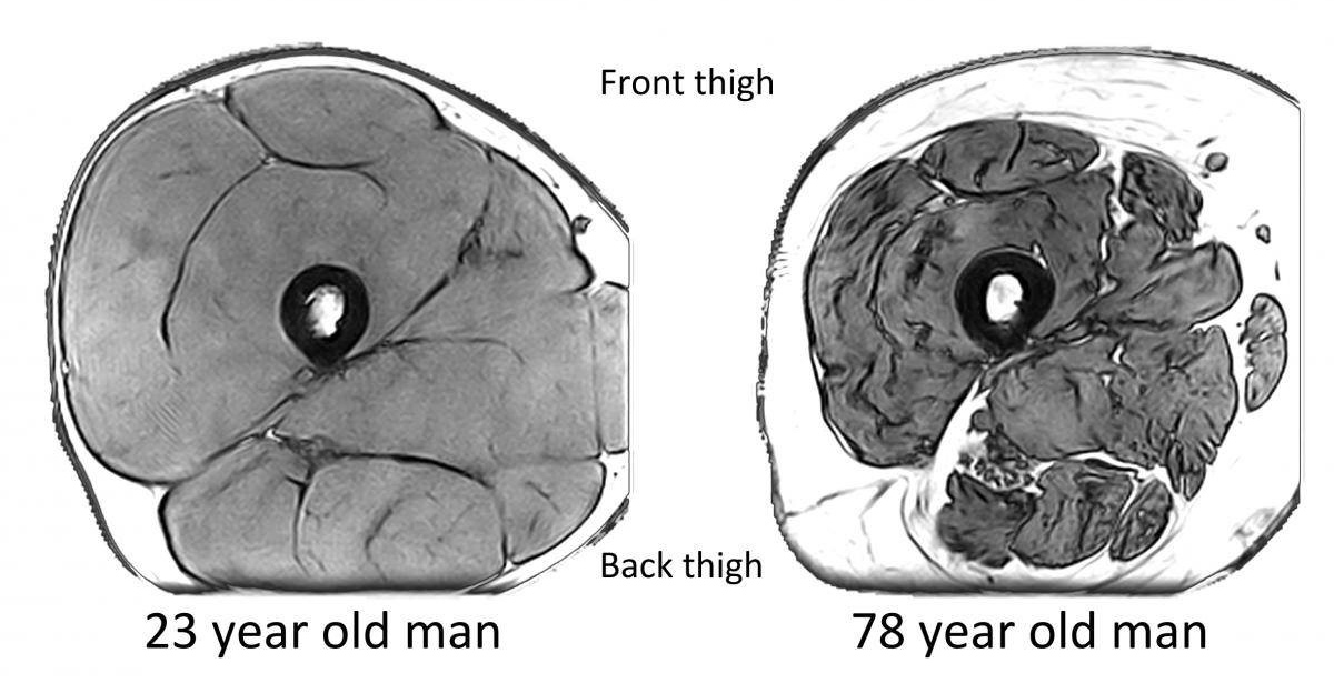 Magnetic resonance images of the mid-thigh. Femur bone is in the middle creating a black ring, muscles are shaded grey and fat is white